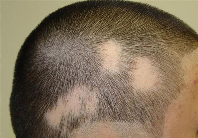 Las vitaminas de la dama la fórmula para los cabellos la composición