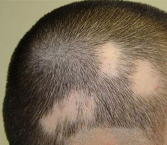Que hacer si caen los cabellos klokami