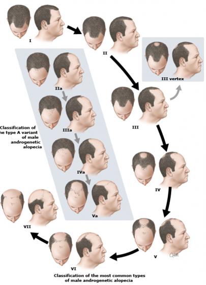 La máscara de los cabello de las canas