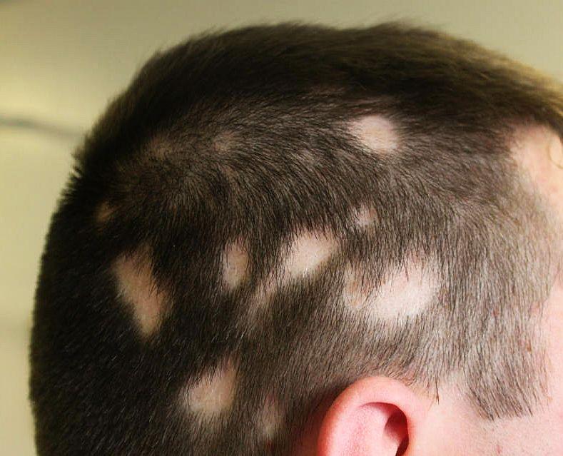 Quien que máscaras han ayudado contra la caída de los cabello